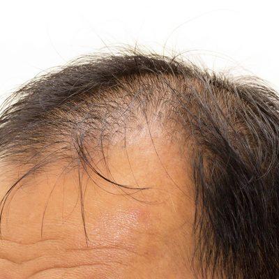 Kök Hücre Saç ekiminde Yenilik