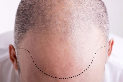 saç çizgisinin oluşturulması