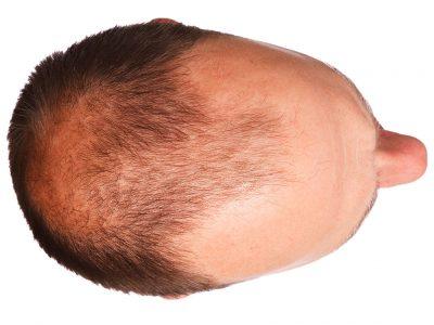 Saç Çizgisinin Planlanması