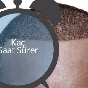 Saç ekimi kaç saat sürer