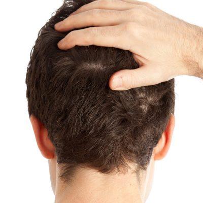 Saç Ekiminden Sonra İlk Hafta