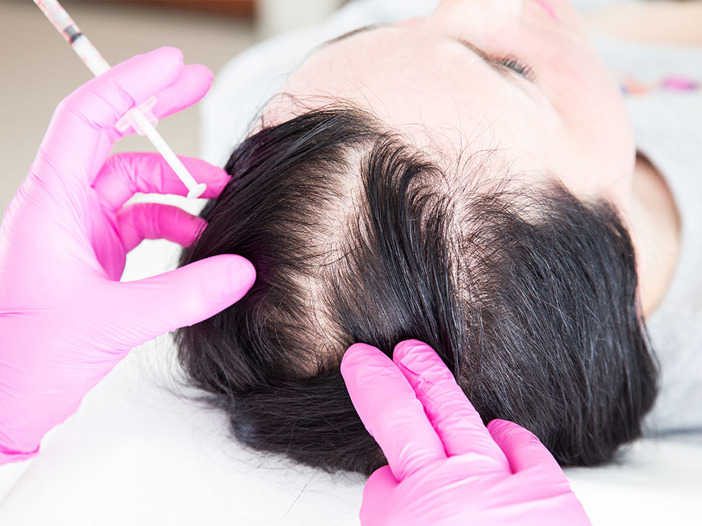 Hamilelikte Saç Uzaması ve Kıllanma