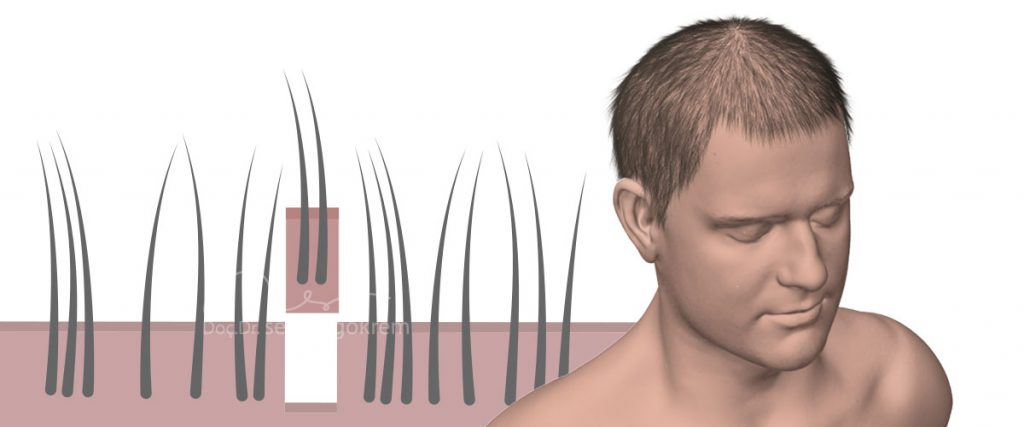 fue saç ekimi uygulanışı