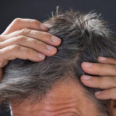 Saç ekimi sonrası şişlik
