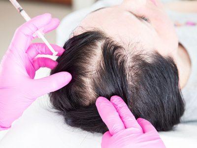 Saç mezoterapisi, dökülmeleri engellemektedir.